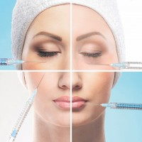 Hyaluronic Acid Implants